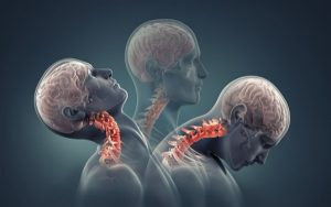 Cervical lordosis: Causes, symptoms, treatment, and prevention